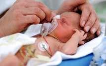 Photo d'archive d'un bébé prématuré à la naissance, au centre hospitalier de Lens le 4 décembre 2013 ( Philippe Huguen (AFP/Archives) )