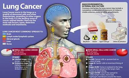 lung cancer symptoms – citybeauty, Human body
