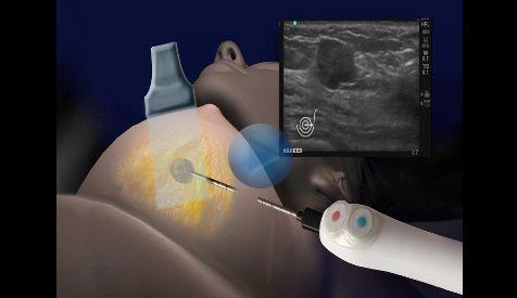 freezing breast tumors